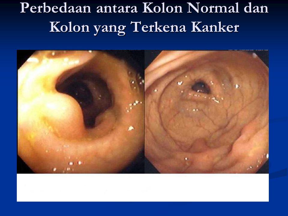 Perbedaan antara Kolon Normal dan Kolon yang Terkena Kanker