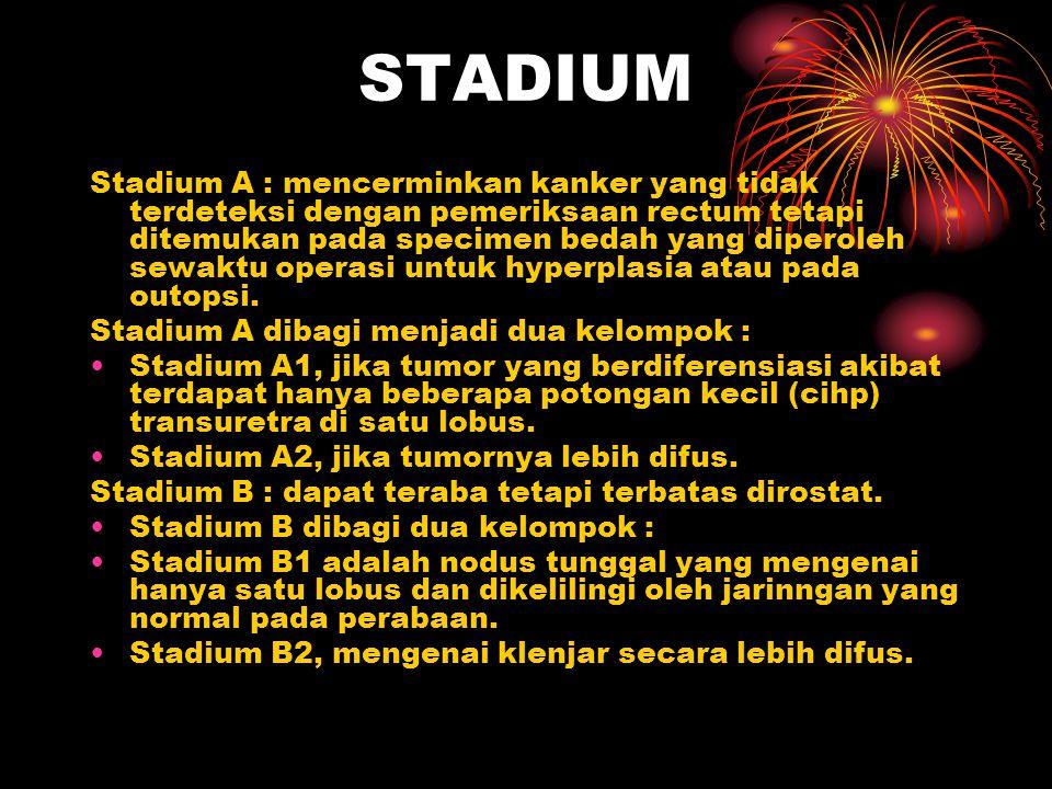 STADIUM Stadium A : mencerminkan kanker yang tidak terdeteksi dengan pemeriksaan rectum tetapi ditemukan pada specimen bedah yang diperoleh sewaktu op