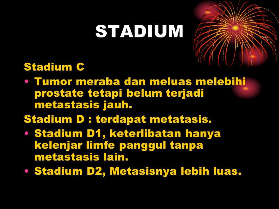 STADIUM Stadium C Tumor meraba dan meluas melebihi prostate tetapi belum terjadi metastasis jauh. Stadium D : terdapat metatasis. Stadium D1, keterlib