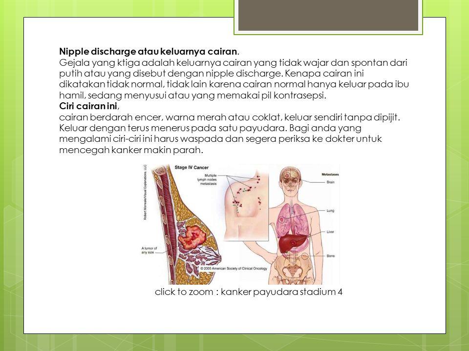 Nipple discharge atau keluarnya cairan. Gejala yang ktiga adalah keluarnya cairan yang tidak wajar dan spontan dari putih atau yang disebut dengan nip