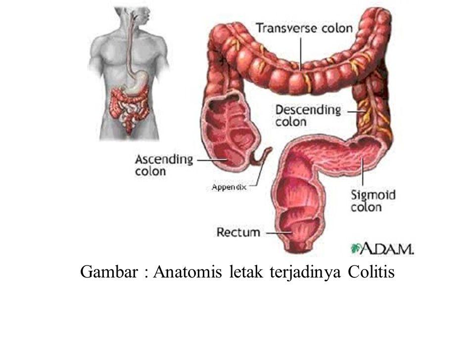 Gambar : Anatomis letak terjadinya Colitis