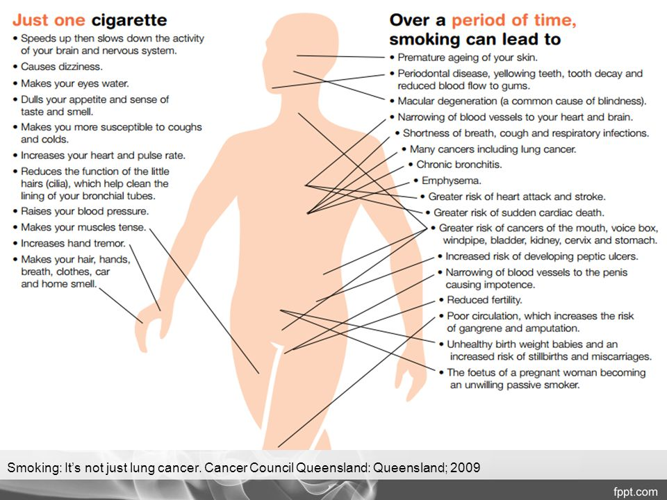 Smoking: It's not just lung cancer. Cancer Council Queensland: Queensland; 2009