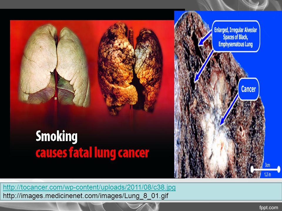 Tersering di dunia 1,61 juta kasus baru, 1,38 kematian/tahun 85-90% pasien  perokok aktif/pasif Risiko kematian meningkat seiring jumlah rokok perhari & durasi merokok Merokok sejak 15 tahun  mutasi sel 2x > sejak usia 20 tahun SCOTH: risiko kanker paru pada perokok pasif > 20-30%.