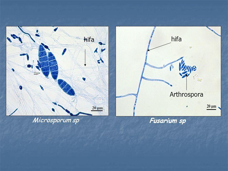 Microsporum sp hifa Fusarium sp hifa Arthrospora