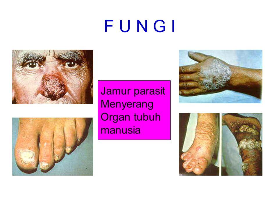 F U N G I Jamur parasit Menyerang Organ tubuh manusia