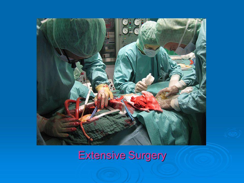 Extensive Surgery