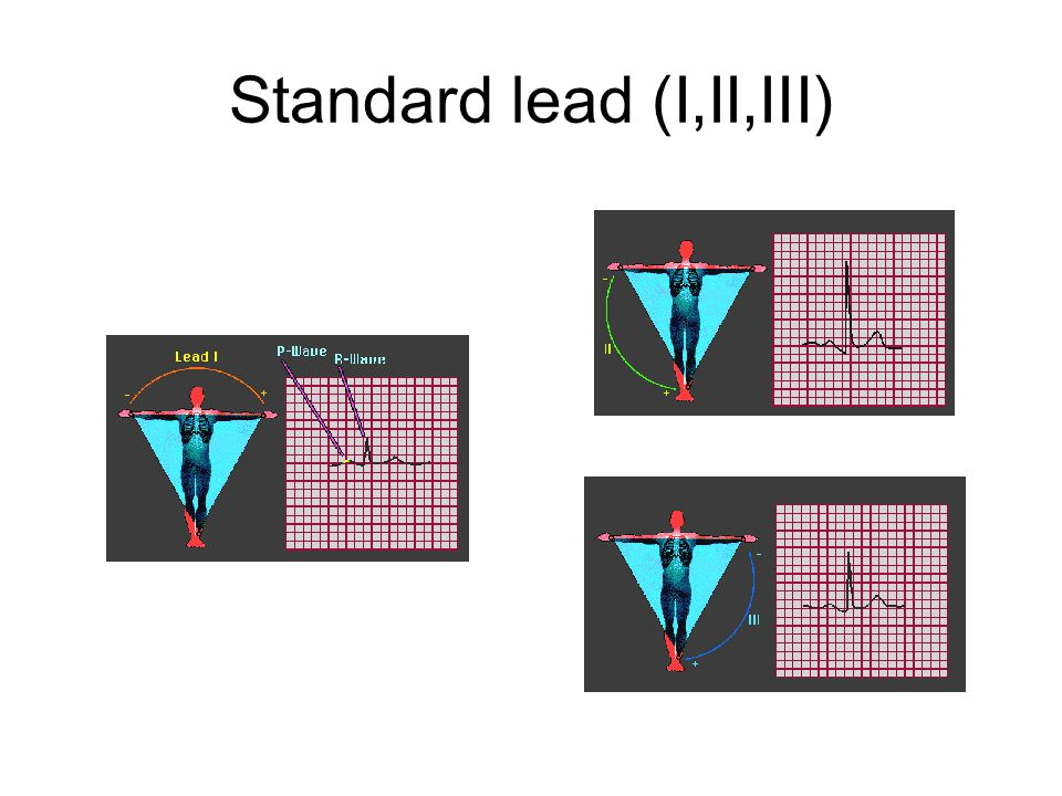 Standard lead (I,II,III)