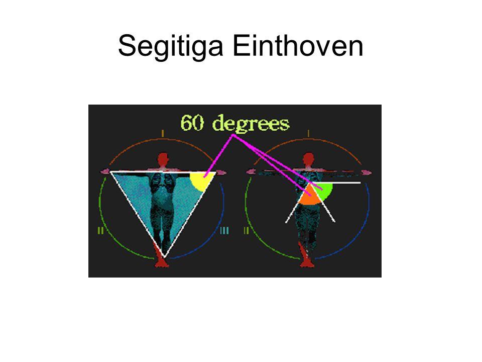 Segitiga Einthoven