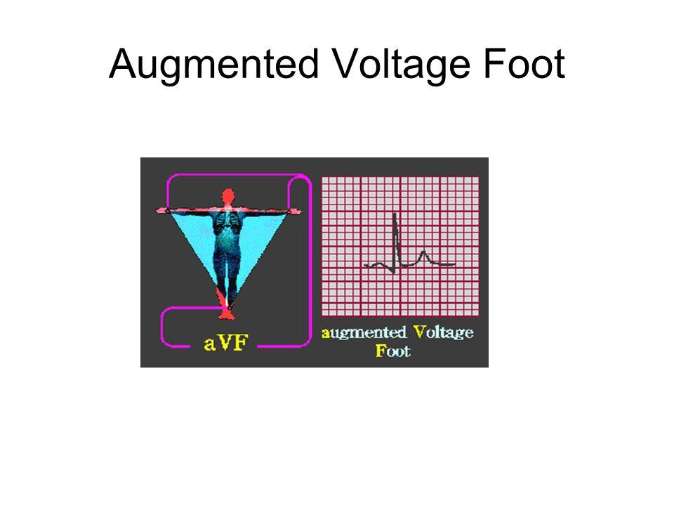 Augmented Voltage Foot