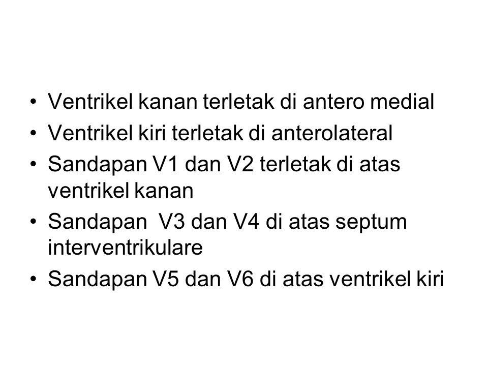 Ventrikel kanan terletak di antero medial Ventrikel kiri terletak di anterolateral Sandapan V1 dan V2 terletak di atas ventrikel kanan Sandapan V3 dan