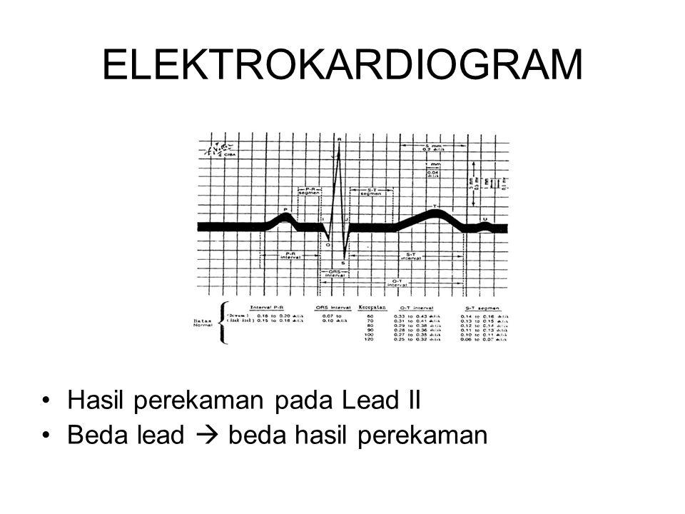 ELEKTROKARDIOGRAM Hasil perekaman pada Lead II Beda lead  beda hasil perekaman