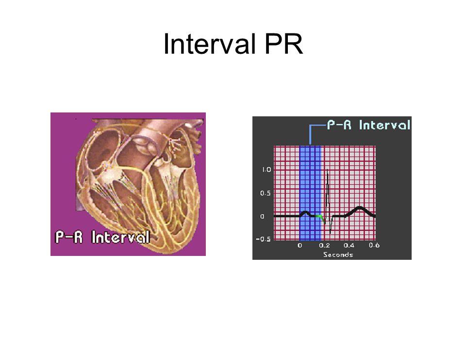 Interval PR
