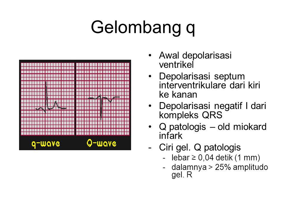 Gelombang q Awal depolarisasi ventrikel Depolarisasi septum interventrikulare dari kiri ke kanan Depolarisasi negatif I dari kompleks QRS Q patologis