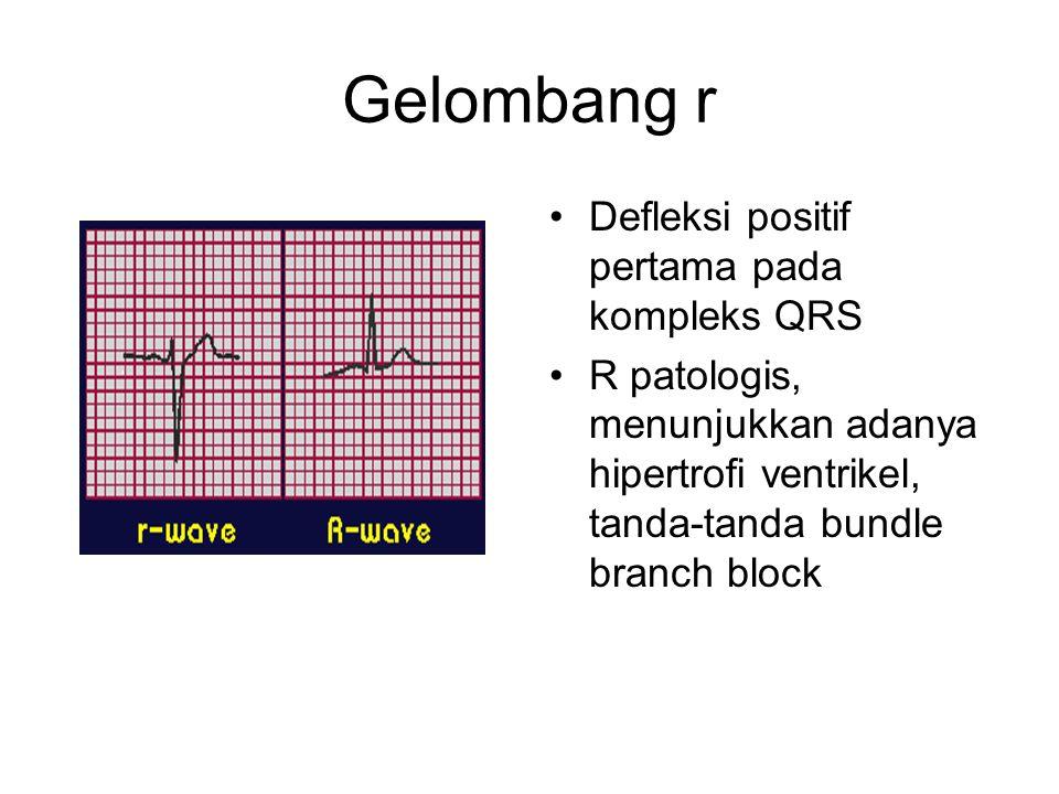 Gelombang r Defleksi positif pertama pada kompleks QRS R patologis, menunjukkan adanya hipertrofi ventrikel, tanda-tanda bundle branch block