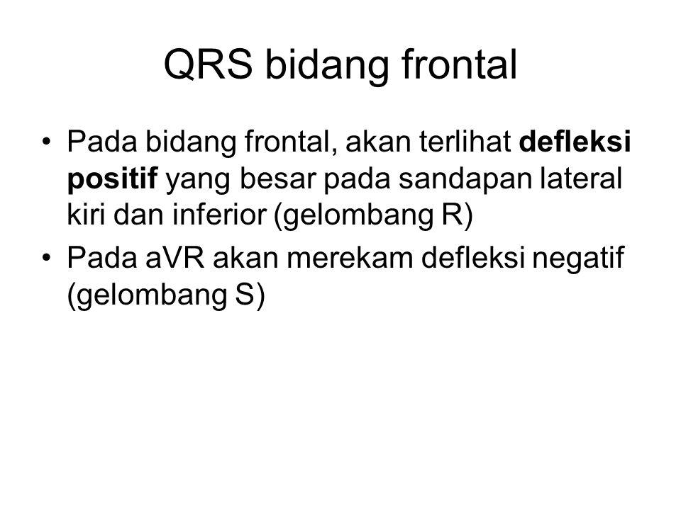 Pada bidang frontal, akan terlihat defleksi positif yang besar pada sandapan lateral kiri dan inferior (gelombang R) Pada aVR akan merekam defleksi ne