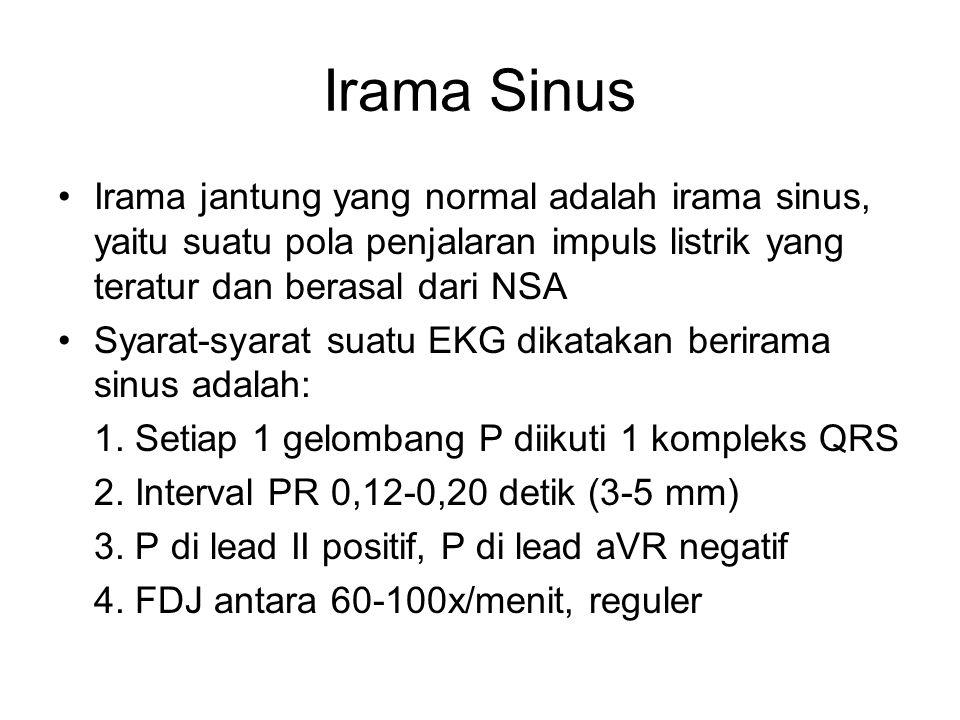 Irama Sinus Irama jantung yang normal adalah irama sinus, yaitu suatu pola penjalaran impuls listrik yang teratur dan berasal dari NSA Syarat-syarat s