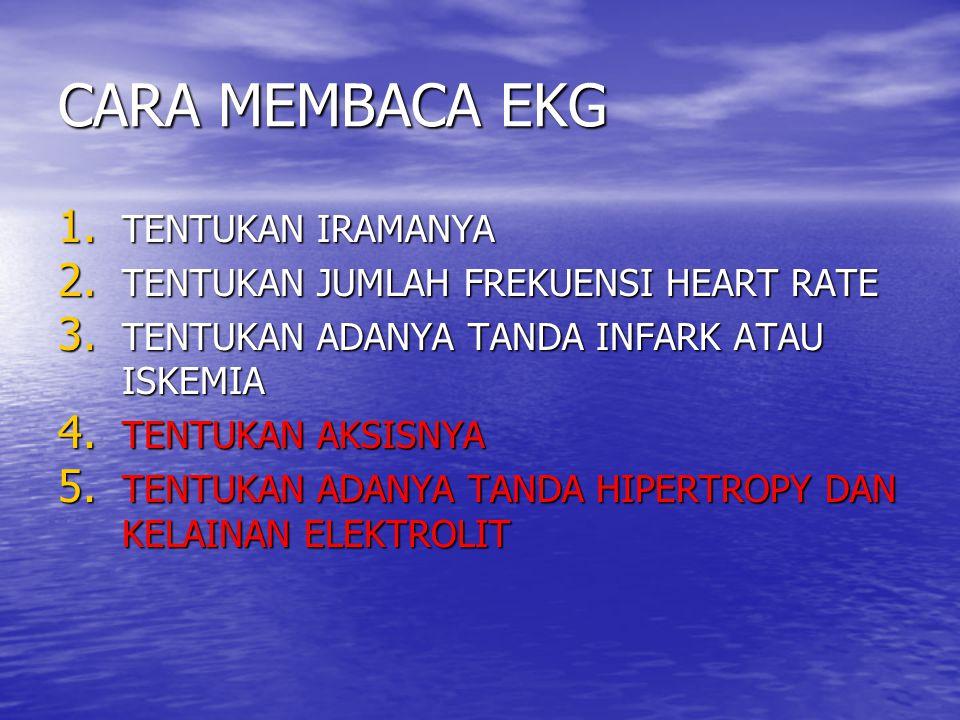 CARA MEMBACA EKG 1. T ENTUKAN IRAMANYA 2. T ENTUKAN JUMLAH FREKUENSI HEART RATE 3. T ENTUKAN ADANYA TANDA INFARK ATAU ISKEMIA 4. T ENTUKAN AKSISNYA 5.