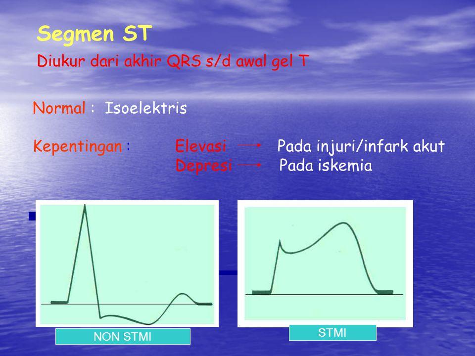 Normal : Isoelektris Kepentingan :Elevasi Pada injuri/infark akut Depresi Pada iskemia Segmen ST Diukur dari akhir QRS s/d awal gel T NON STMI STMI