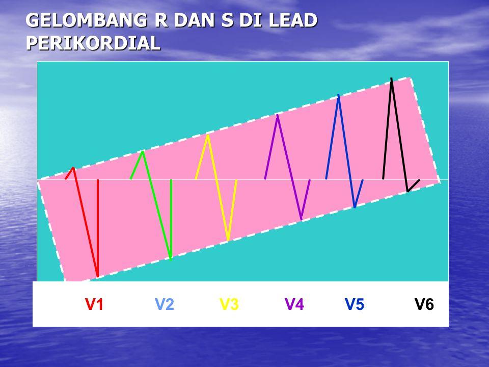 GELOMBANG R DAN S DI LEAD PERIKORDIAL V1 V2 V3 V4 V5 V6