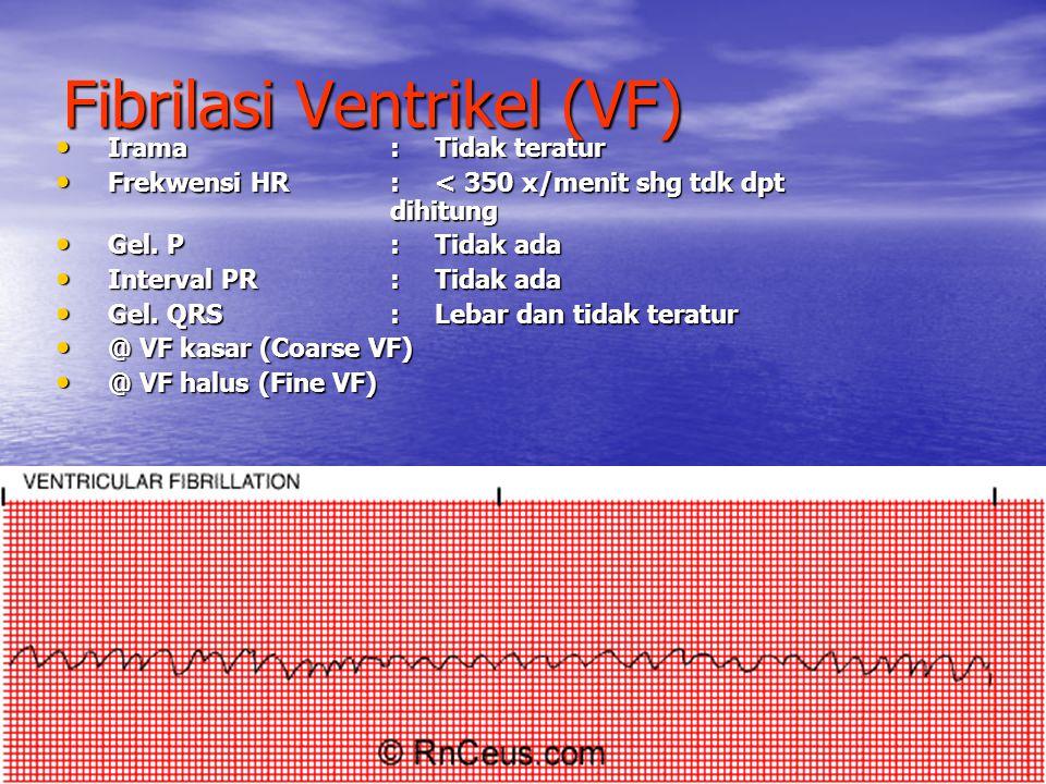 Fibrilasi Ventrikel (VF) Irama:Tidak teratur Irama:Tidak teratur Frekwensi HR:< 350 x/menit shg tdk dpt dihitung Frekwensi HR:< 350 x/menit shg tdk dp