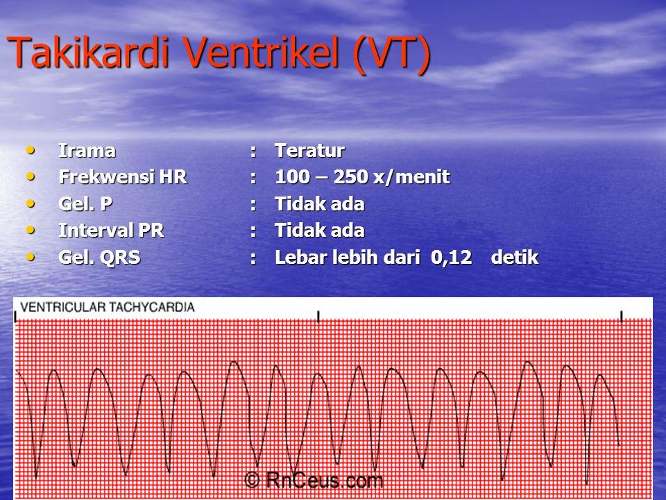 Takikardi Ventrikel (VT) Irama:Teratur Frekwensi HR:100 – 250 x/menit Gel. P:Tidak ada Interval PR:Tidak ada Gel. QRS:Lebar lebih dari 0,12detik
