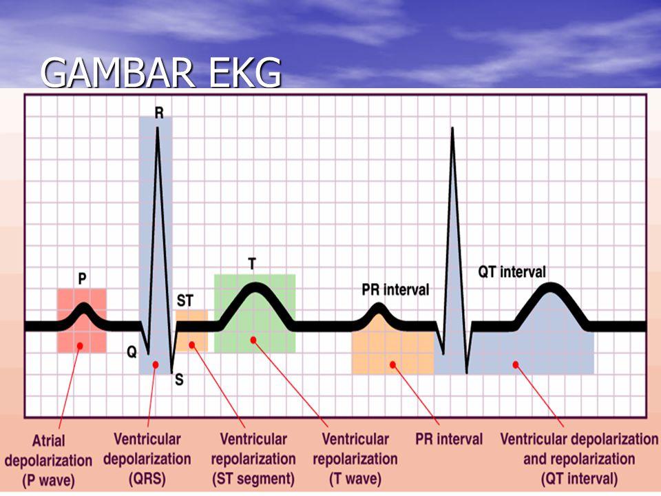 GAMBAR EKG