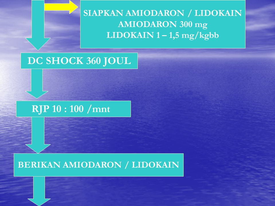 SIAPKAN AMIODARON / LIDOKAIN AMIODARON 300 mg LIDOKAIN 1 – 1,5 mg/kgbb DC SHOCK 360 JOUL RJP 10 : 100 /mnt BERIKAN AMIODARON / LIDOKAIN