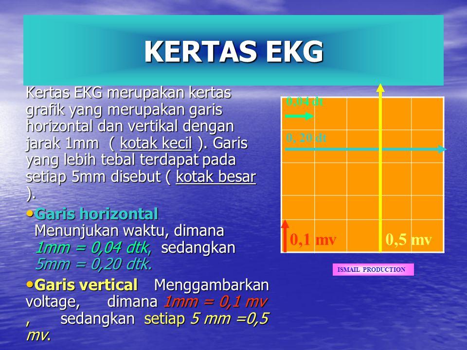 KERTAS EKG Kertas EKG merupakan kertas grafik yang merupakan garis horizontal dan vertikal dengan jarak 1mm ( kotak kecil ). Garis yang lebih tebal te