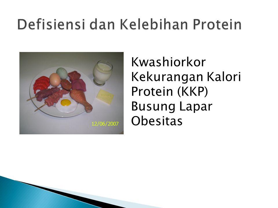 Kwashiorkor Kekurangan Kalori Protein (KKP) Busung Lapar Obesitas