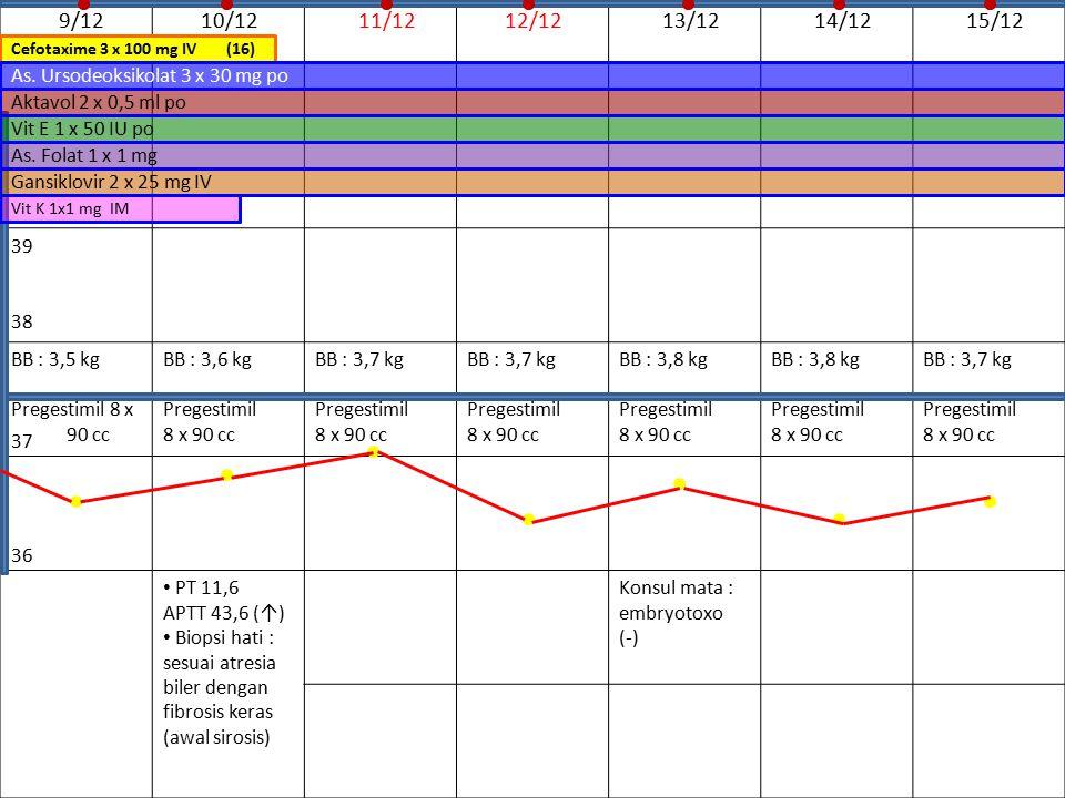 9/12 10/12 11/12 12/12 13/12 14/12 15/12 39 BB : 3,5 kg Pregestimil 8 x 90 cc BB : 3,6 kg Pregestimil 8 x 90 cc BB : 3,7 kg Pregestimil 8 x 90 cc BB :