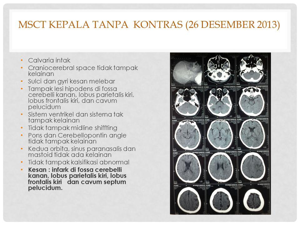 MSCT KEPALA TANPA KONTRAS (26 DESEMBER 2013) Calvaria intak Craniocerebral space tidak tampak kelainan Sulci dan gyri kesan melebar Tampak lesi hipode