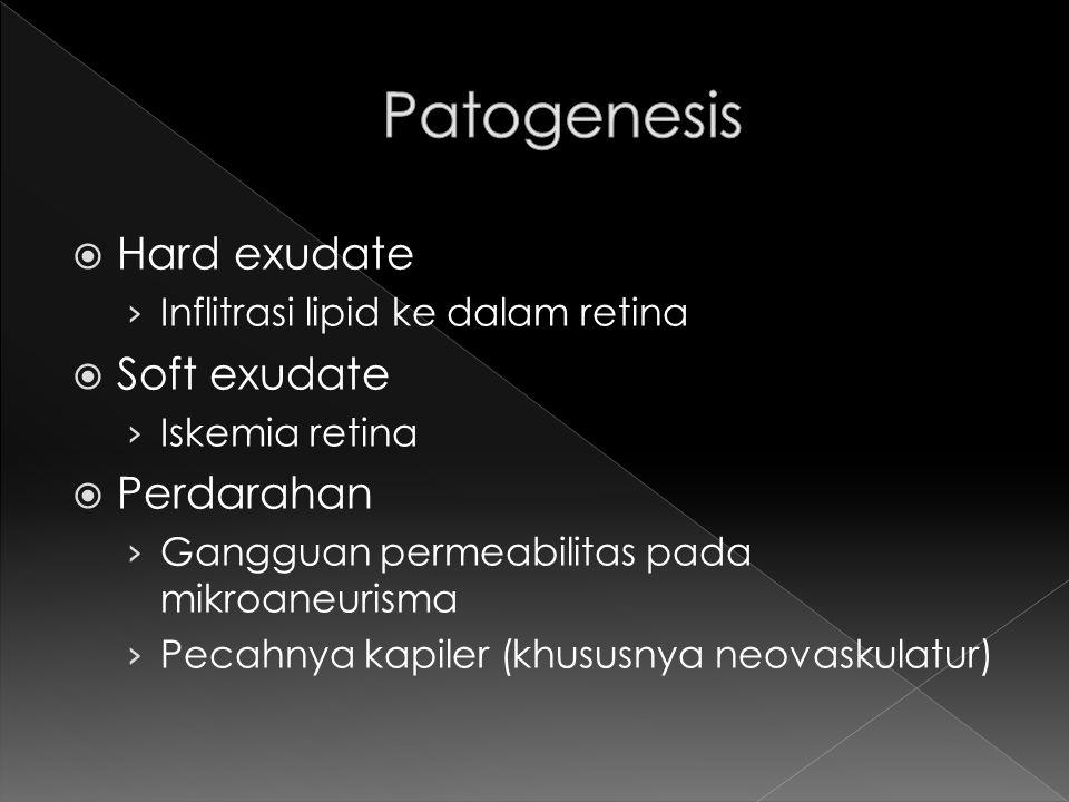  Hard exudate › Inflitrasi lipid ke dalam retina  Soft exudate › Iskemia retina  Perdarahan › Gangguan permeabilitas pada mikroaneurisma › Pecahnya