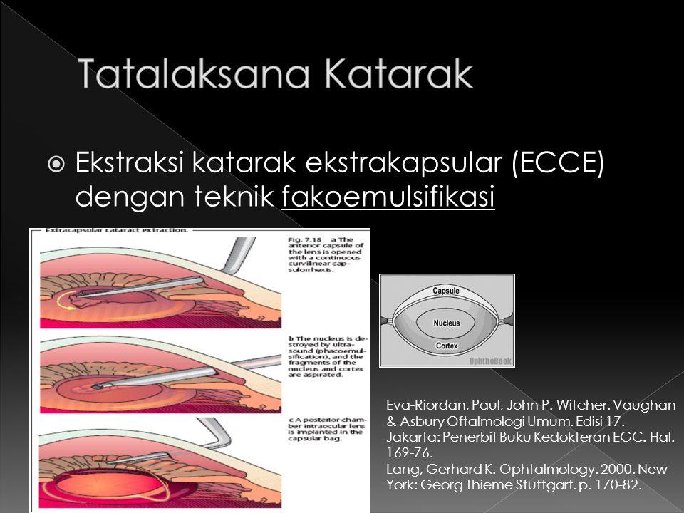  Ekstraksi katarak ekstrakapsular (ECCE) dengan teknik fakoemulsifikasi Eva-Riordan, Paul, John P. Witcher. Vaughan & Asbury Oftalmologi Umum. Edisi
