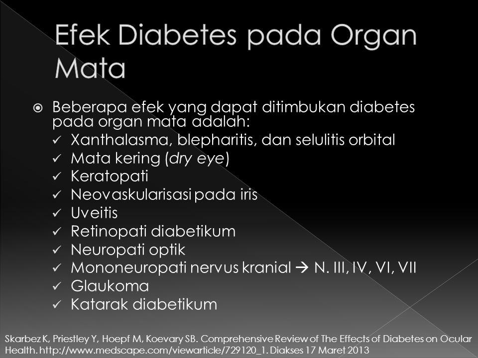  Beberapa efek yang dapat ditimbukan diabetes pada organ mata adalah: Xanthalasma, blepharitis, dan selulitis orbital Mata kering (dry eye) Keratopat