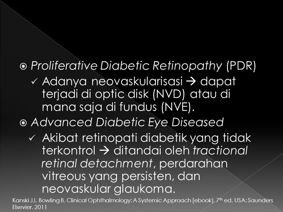  Proliferative Diabetic Retinopathy (PDR) Adanya neovaskularisasi  dapat terjadi di optic disk (NVD) atau di mana saja di fundus (NVE).  Advanced D