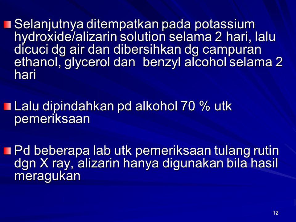 Selanjutnya ditempatkan pada potassium hydroxide/alizarin solution selama 2 hari, lalu dicuci dg air dan dibersihkan dg campuran ethanol, glycerol dan