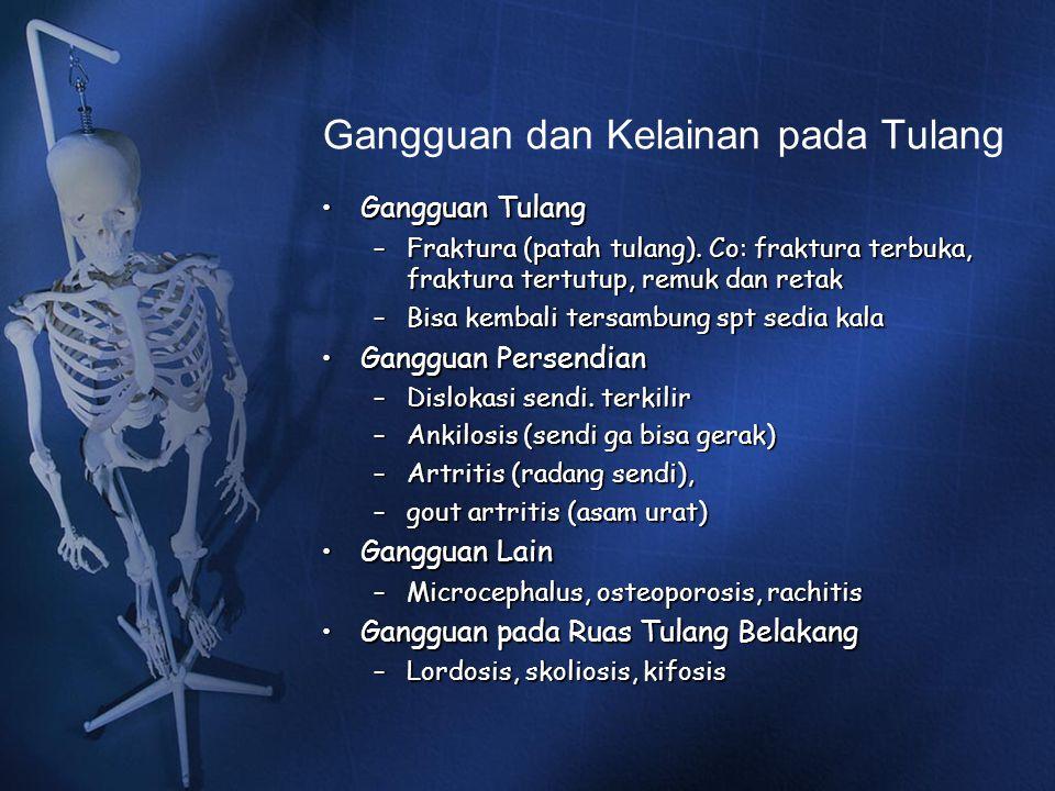 Gangguan dan Kelainan pada Tulang Gangguan TulangGangguan Tulang –Fraktura (patah tulang). Co: fraktura terbuka, fraktura tertutup, remuk dan retak –B
