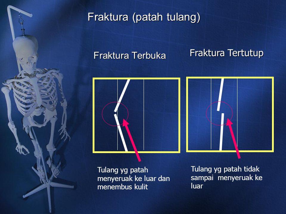 Fraktura (patah tulang) Fraktura Terbuka Tulang yg patah menyeruak ke luar dan menembus kulit Fraktura Tertutup Tulang yg patah tidak sampai menyeruak