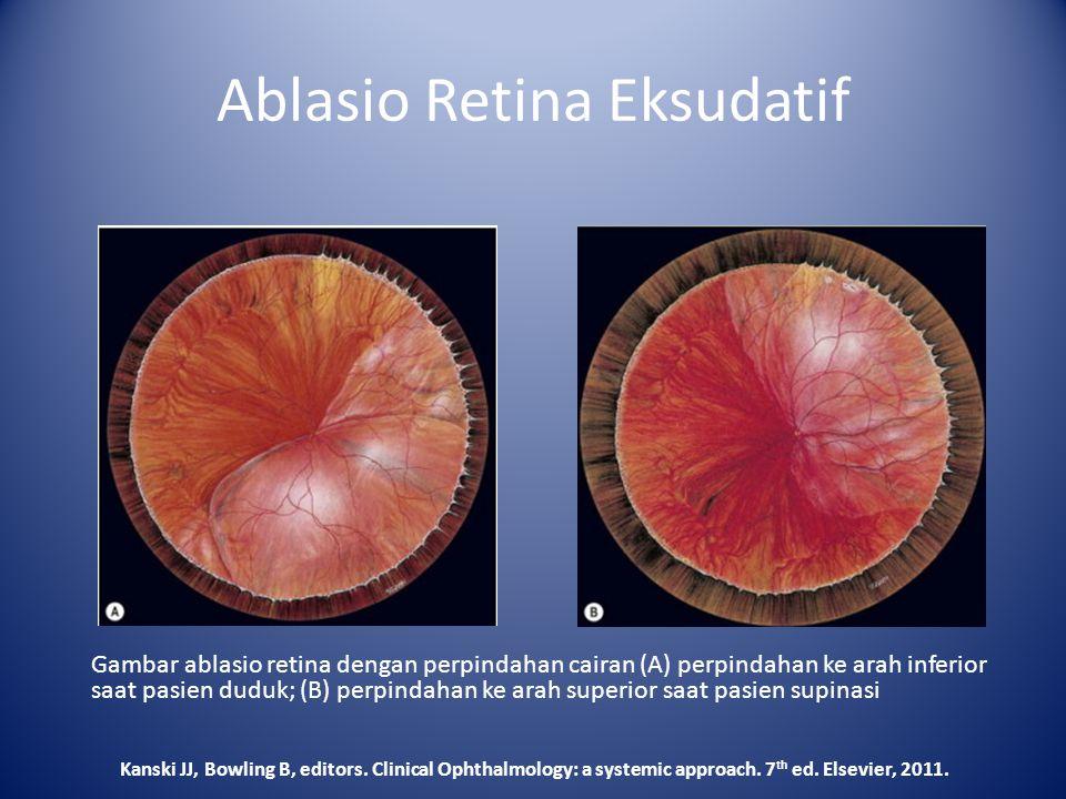 Ablasio Retina Eksudatif Gambar ablasio retina dengan perpindahan cairan (A) perpindahan ke arah inferior saat pasien duduk; (B) perpindahan ke arah s