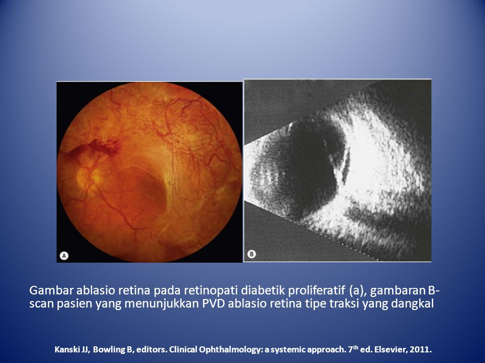 Gambar ablasio retina pada retinopati diabetik proliferatif (a), gambaran B- scan pasien yang menunjukkan PVD ablasio retina tipe traksi yang dangkal