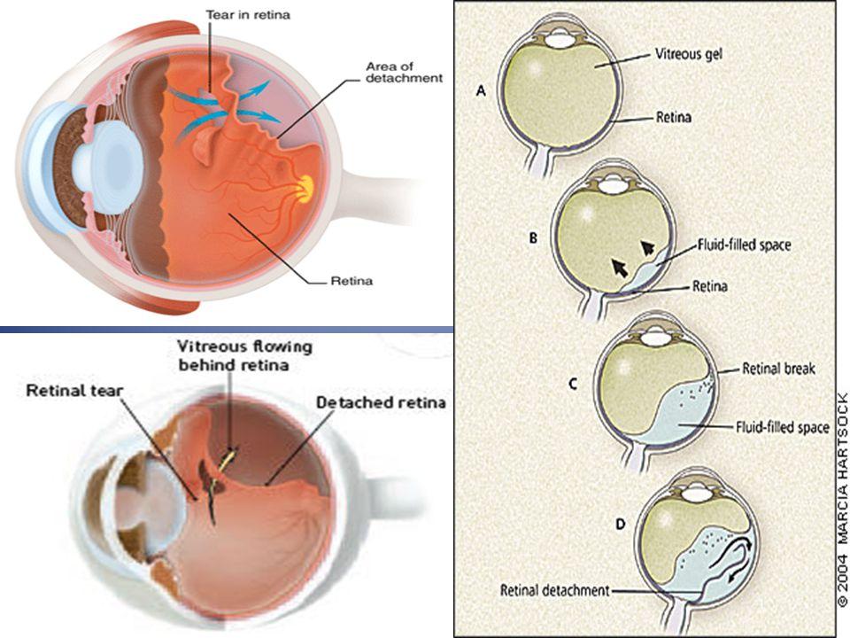 Tatalaksana dan Prognosis Vitrektomi pars plana dapat menghilangkan bagian traksional, selain itu dilanjutkan dengan menghilangkan membran fibrotik Tatalaksana pada ablasio retina jenis ini sulit, prognosisnya tidak terlalu baik.