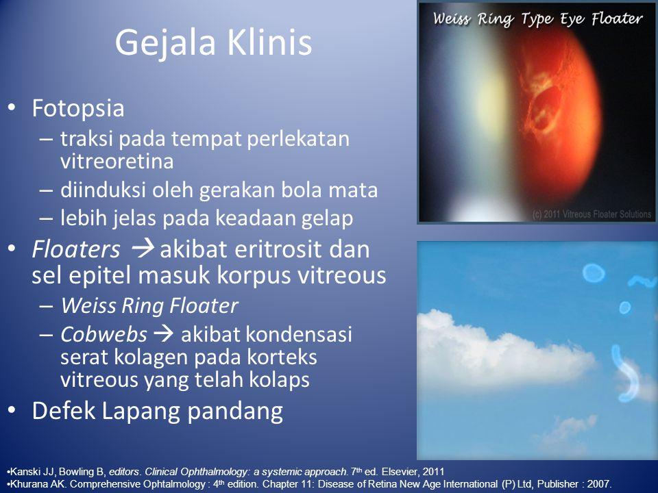 Gejala Klinis Fotopsia – traksi pada tempat perlekatan vitreoretina – diinduksi oleh gerakan bola mata – lebih jelas pada keadaan gelap Floaters  aki