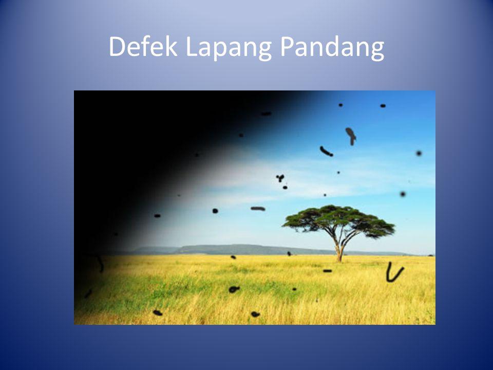 Defek Lapang Pandang
