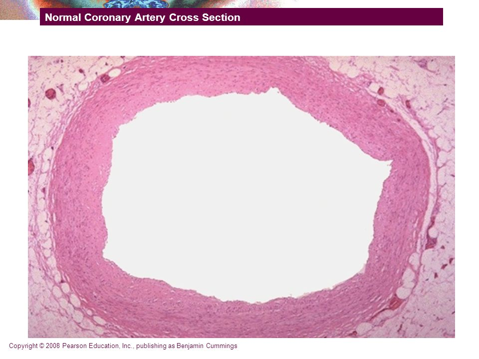 Copyright © 2008 Pearson Education, Inc., publishing as Benjamin Cummings Normal Coronary Artery Cross Section