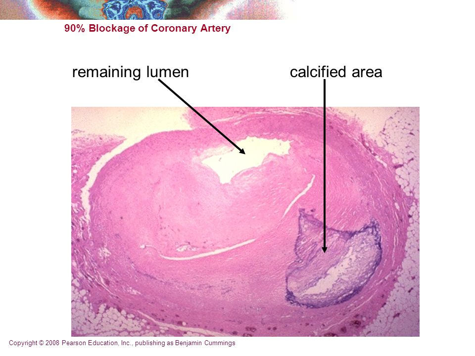 Copyright © 2008 Pearson Education, Inc., publishing as Benjamin Cummings 90% Blockage of Coronary Artery calcified arearemaining lumen