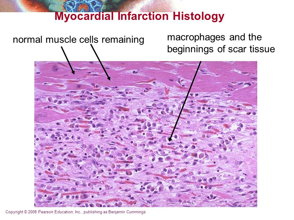 Copyright © 2008 Pearson Education, Inc., publishing as Benjamin Cummings Myocardial Infarction Histology normal muscle cells remaining macrophages and the beginnings of scar tissue