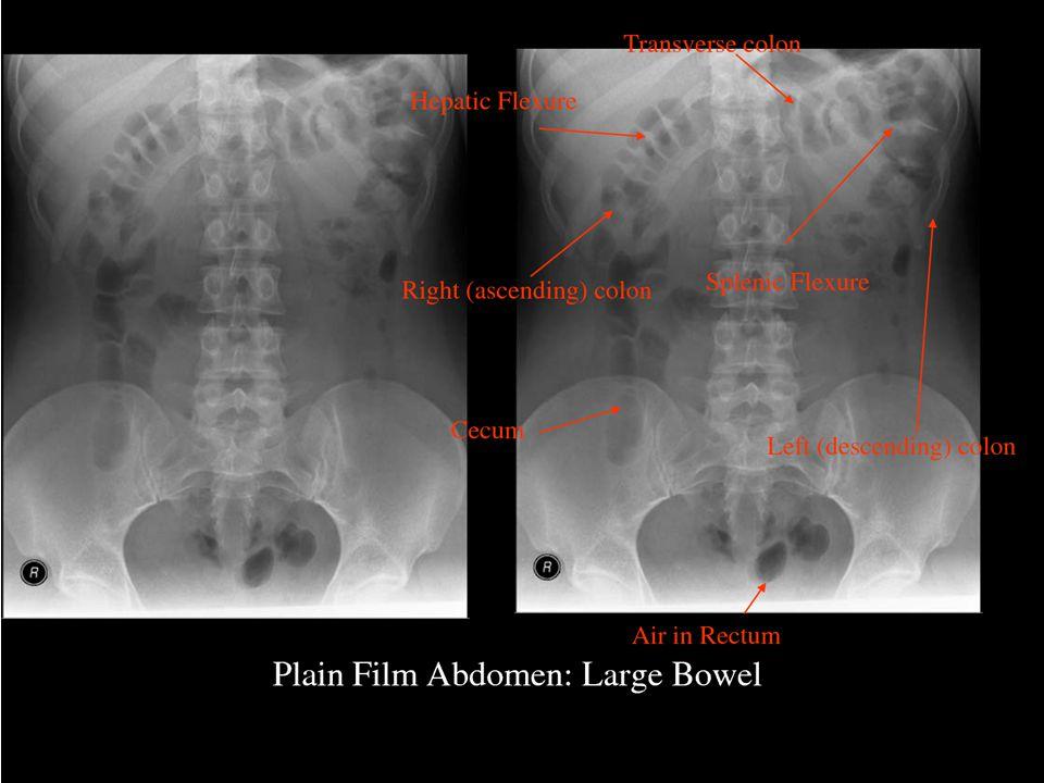 definisi : Paparan sinar-x secara terus- menerus pada bagian tubuh dan diteruskan pada monitor agar dapat terlihat bagian dan gerakan organ secara terperinci.