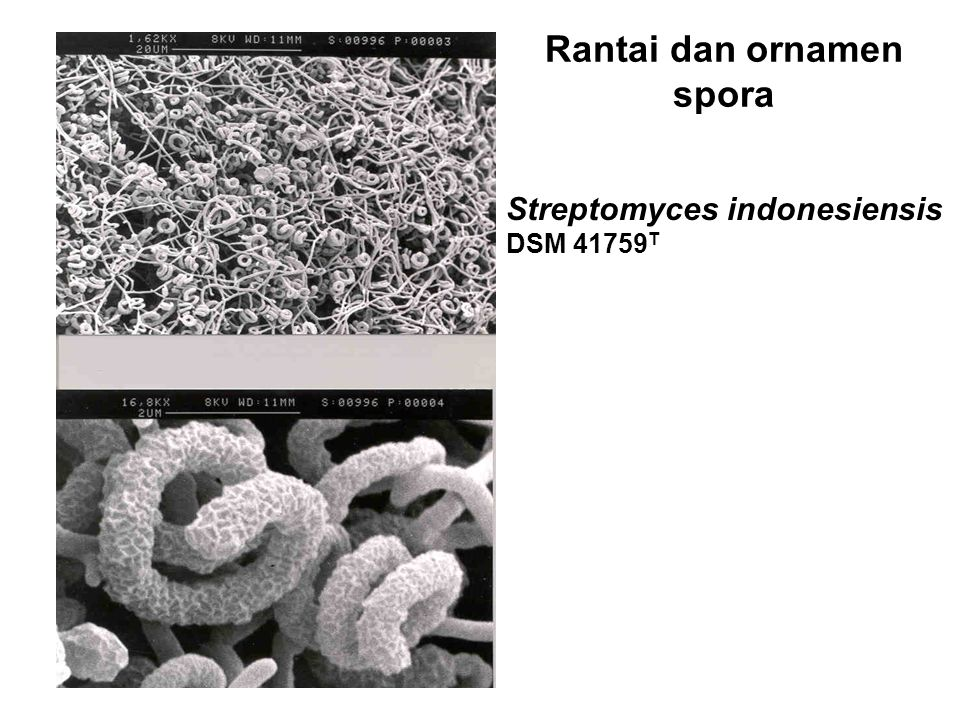 Rantai dan ornamen spora Streptomyces indonesiensis DSM 41759 T