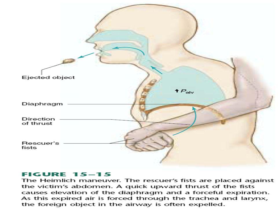  KLINIS :  Batuk / bersin dan kongesti nasal  Pengeluaran mukus/ PND  Skit kepala/demam ringan/malaise  DIAGNOSA: -riwayat/pemeriksaan Fisik KOMLIKASI: -sinusitis/oma -infeksi saluran nafas bawah Penatalaksanaan : -istirahat/hidrasi/konsumsi vit C -dekongestan/antibiotik