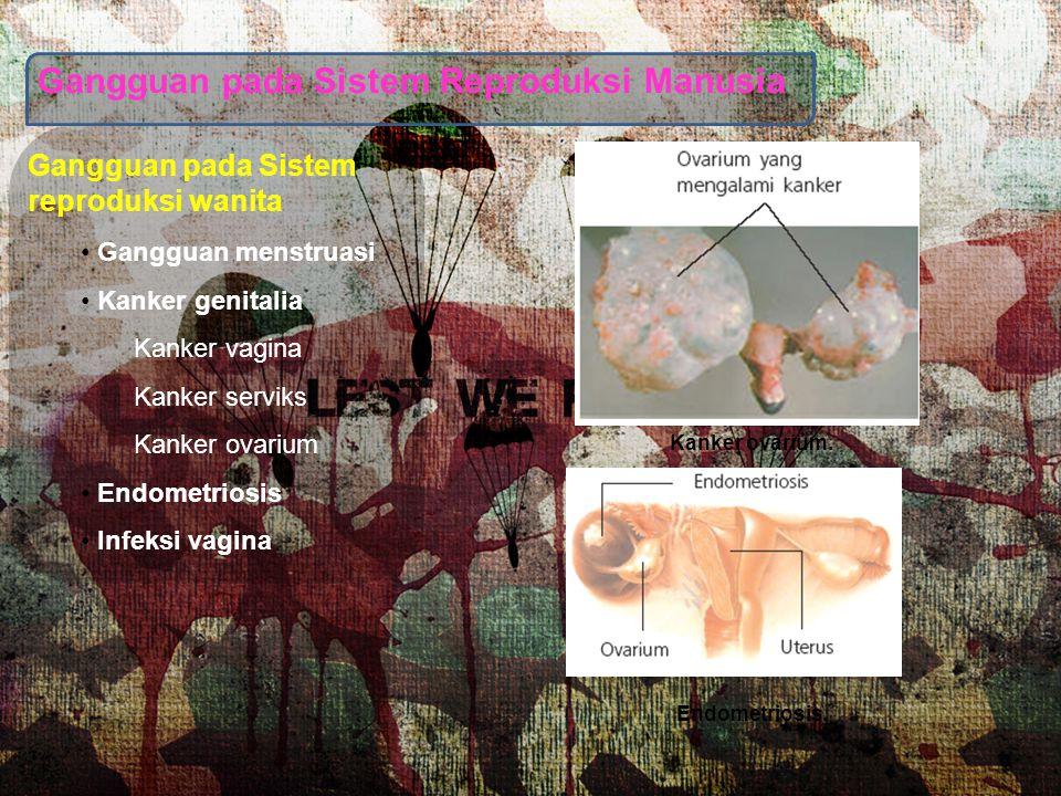 Gangguan pada Sistem Reproduksi Manusia Gangguan pada Sistem reproduksi wanita Gangguan menstruasi Kanker genitalia Kanker vagina Kanker serviks Kanke